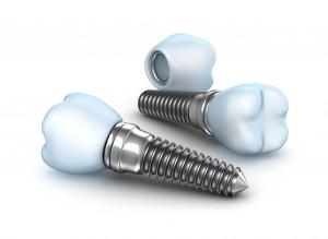 Bennettsville, SC implant dentist